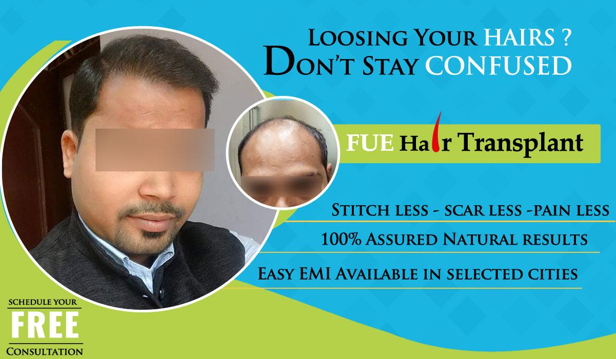 Hair Transplant - Hairdoctors