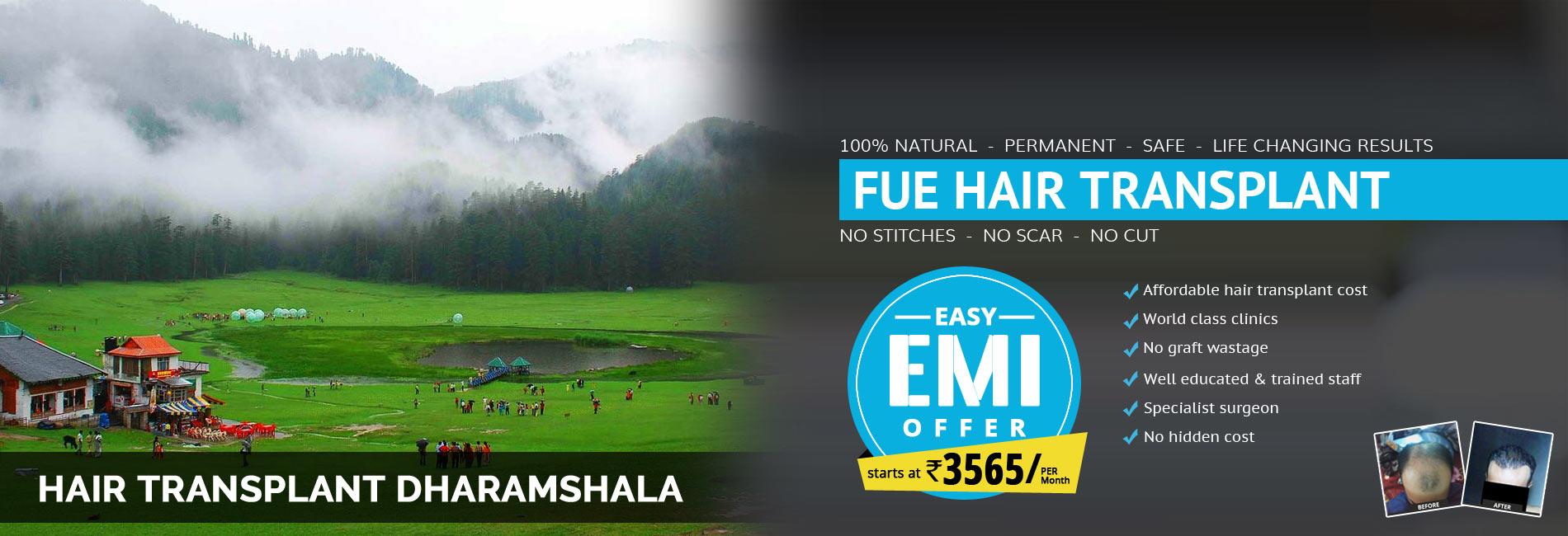 Hair Transplant Dharamshala