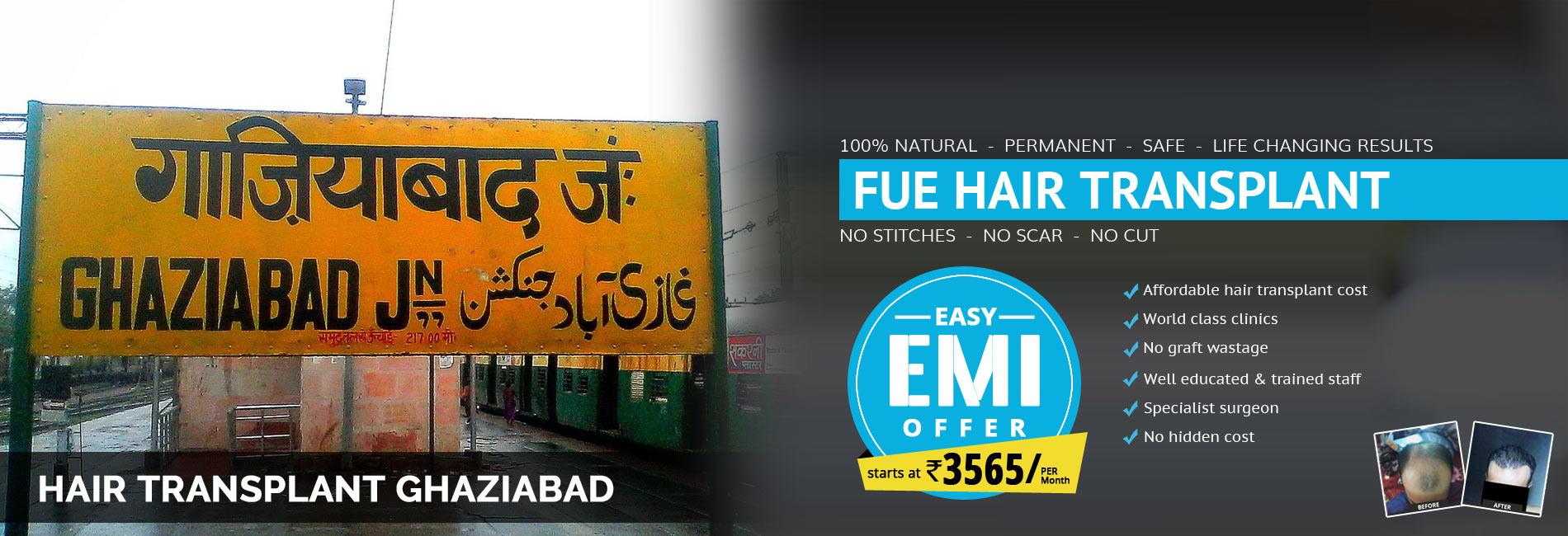 Hair Transplant Ghaziabad