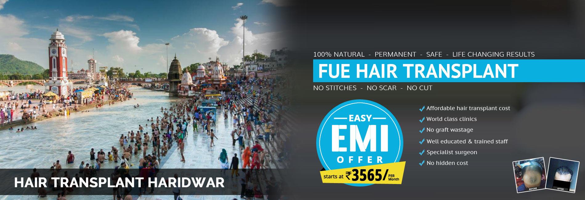 Hair Transplant Haridwar