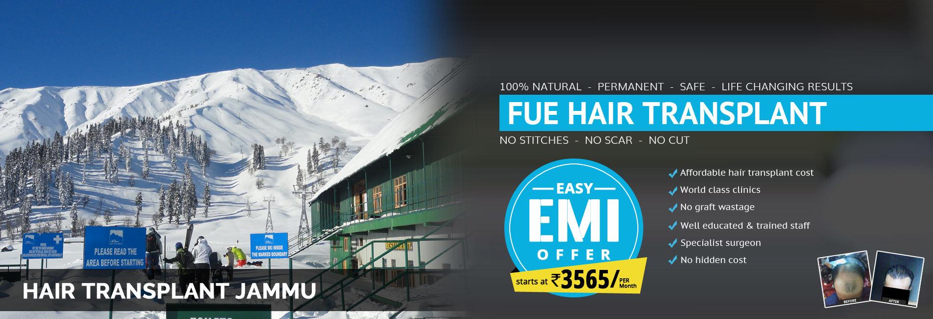 Hair Transplant Jammu