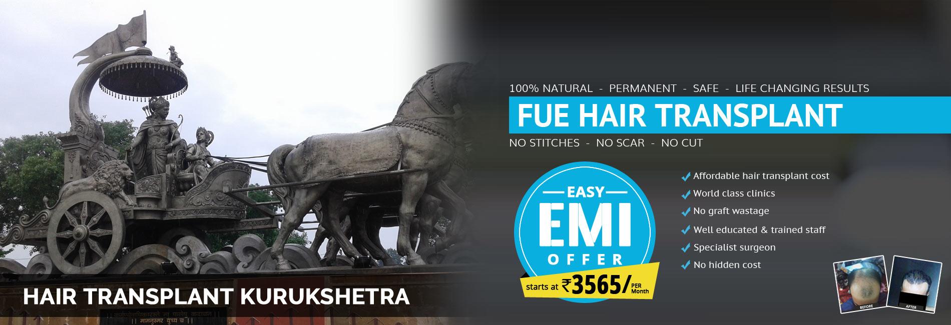 Hair Transplant Kurukshetra