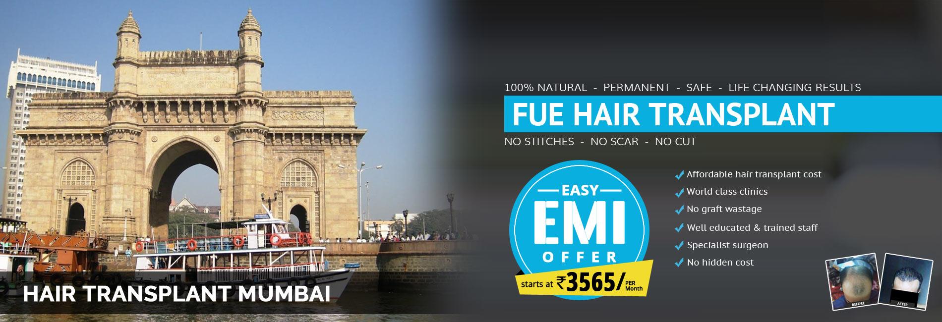 Hair Transplant Mumbai