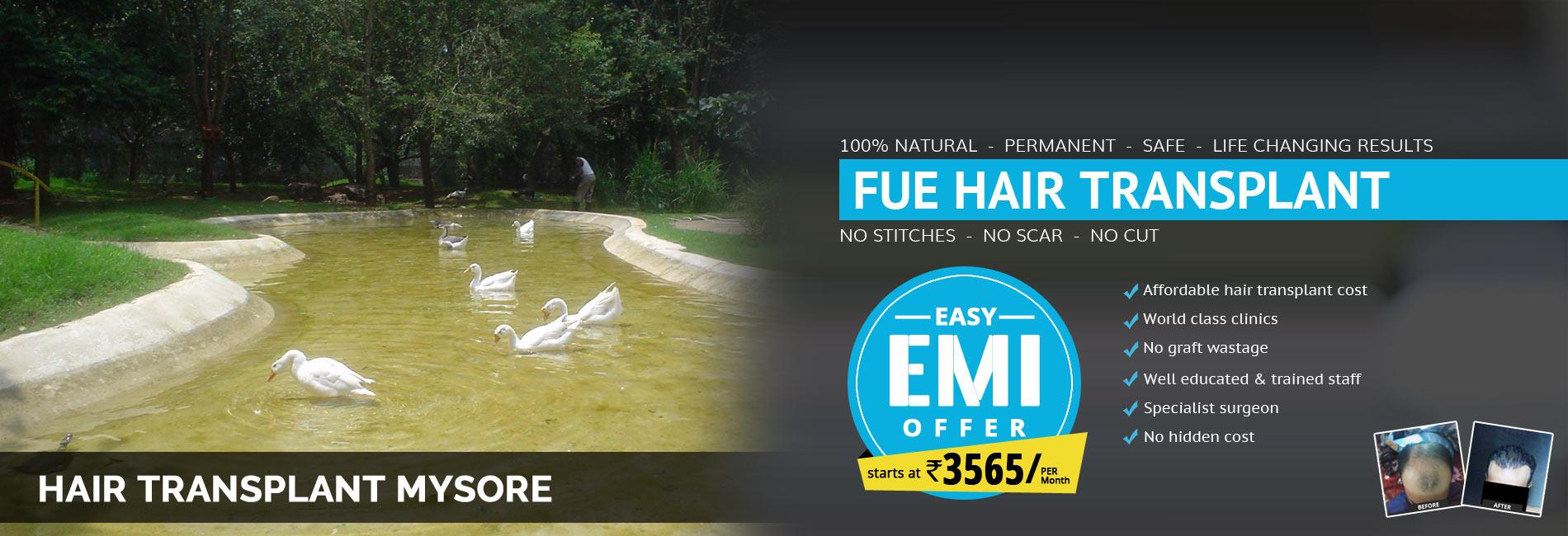 Hair Transplant Mysore