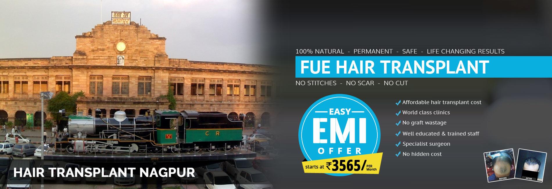 Hair Transplant Nagpur