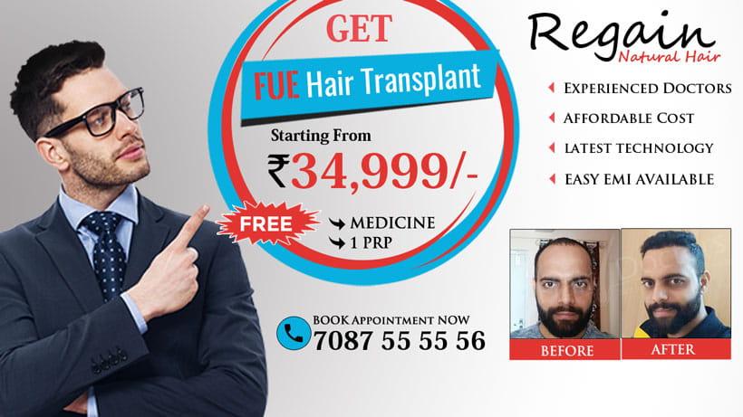 Hair Transplant Bangalore