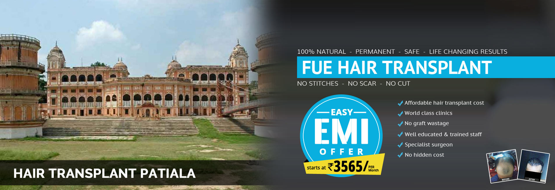 Hair Transplant Patiala