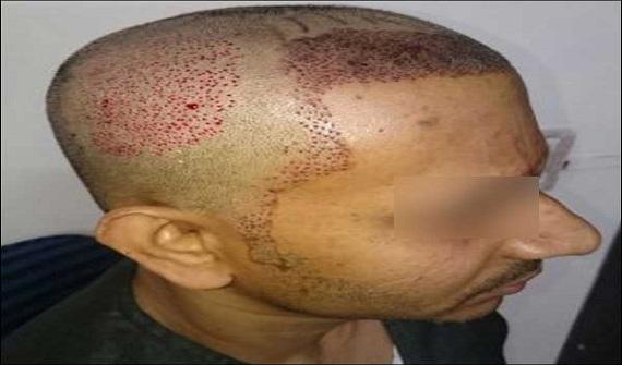 FUE-Hair-Transplant-Surgery