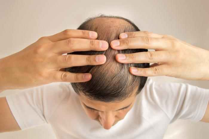 Is Hair Transplant Surgery Better Than Medication?
