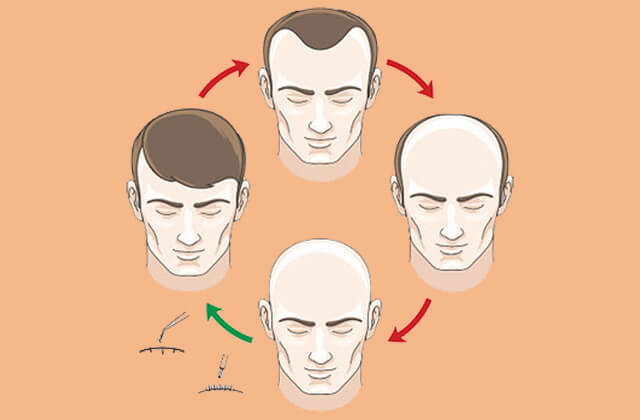 side-effects-hair-transplant
