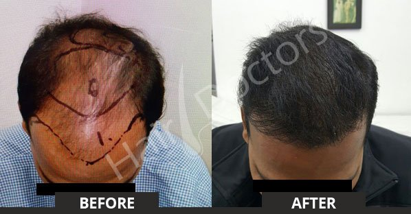 is hair transplant is permanent?