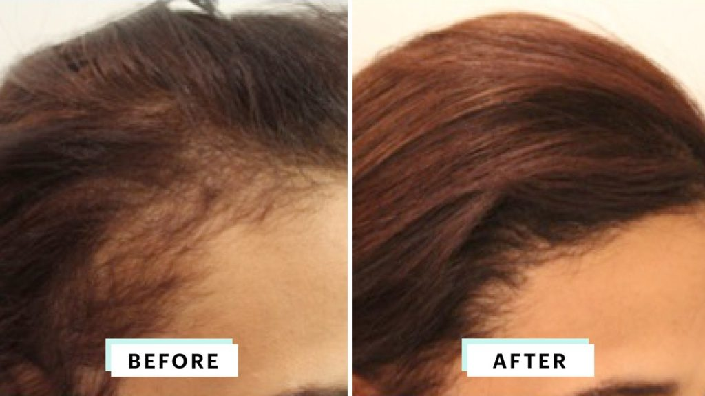 Women Hair Transplant - Is Hair Transplant Permanent?
