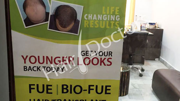 Hair Transplant in Amritsar