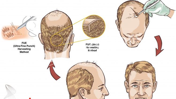 Hair Transplant in Dharamshala