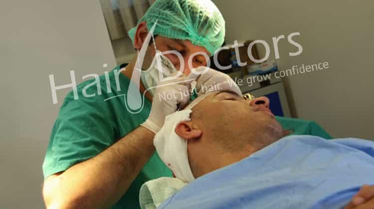 Hair Transplant in Vapi