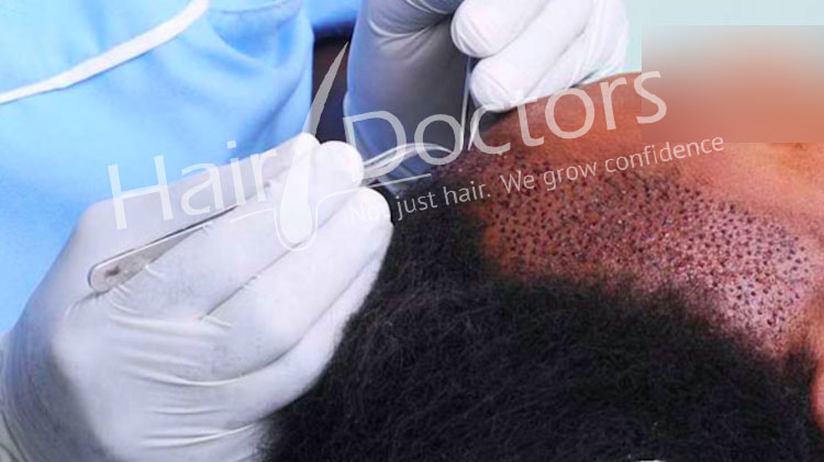Hair Transplant in Mysore