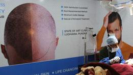 Hair Transplant in Patiala