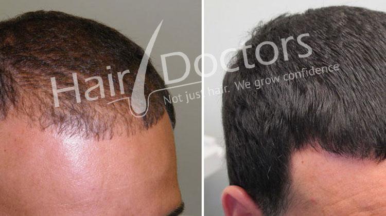 Hair Transplant in silvassa
