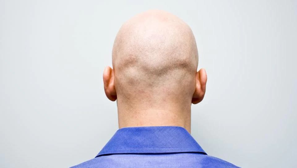 Hair Transplant of Baldhead Person