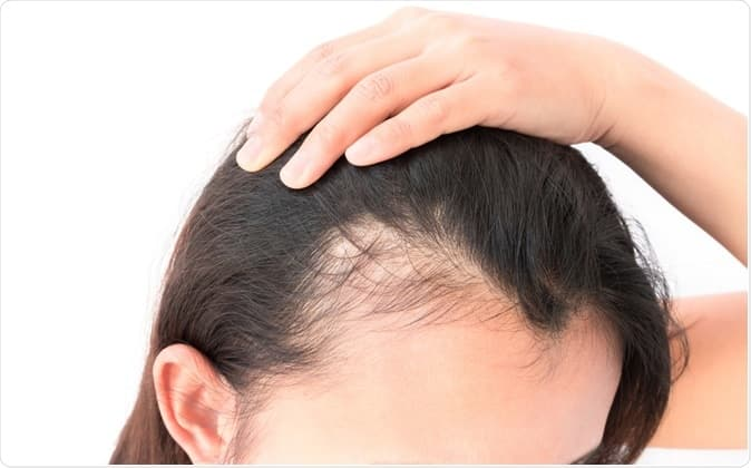 Baldness before hair transplant