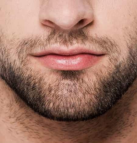Beard & Moustache Transplant