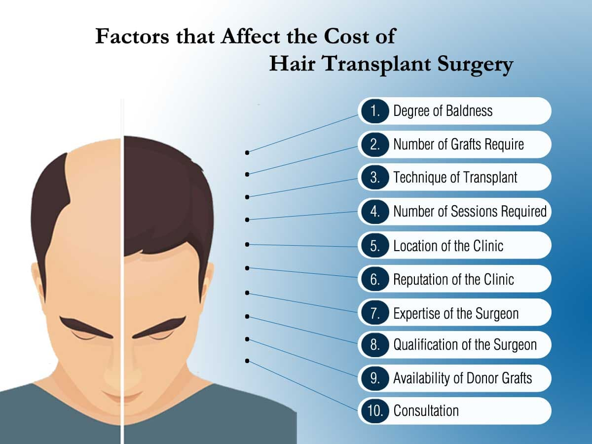 Factor Affecting Hair Transplant Surgery