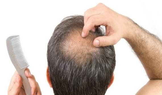 Hair Loss Patient at Hyderabad clinic