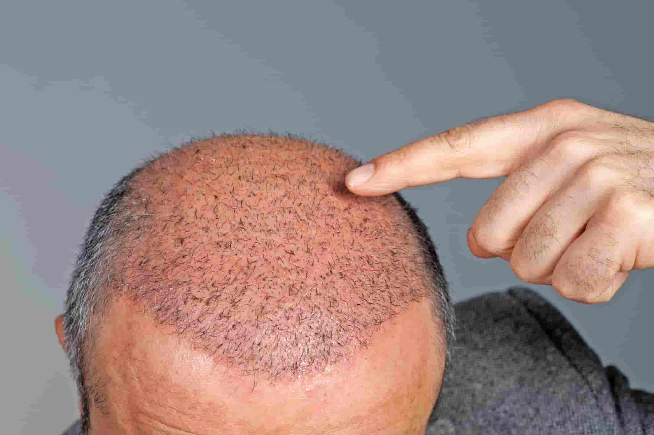 Baldhead Patient for hair transplant