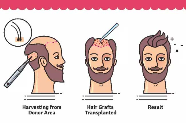 Hair Transplant in Vijayawada