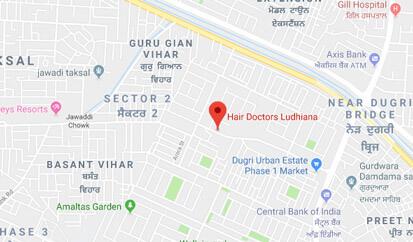 Hair Tranplant clinic in Ludhiana